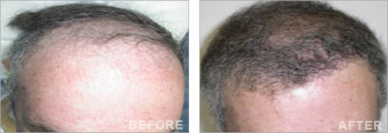 Hair Transplantation by Dr Touma