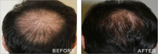 Crown hair transplantation 1 FUE session