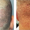 ARTAS Robotic FUE vs other Hair Transplant methods