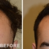 Hair Transplant Makeover Artas