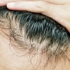 Hair Transplants are Now at the Lowest Cost